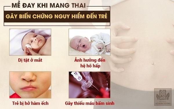 Nổi mề đay khi mang thai có thể gây ra những biến chứng nguy hiểm cho bé