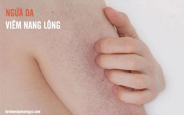 viêm nang lông gây ngứa da đối xứng