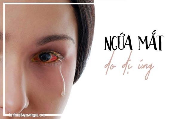 dấu hiệu ngứa mắt do dị ứng