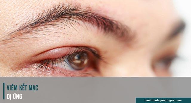 viêm kết mạc dị ứng ở mắt