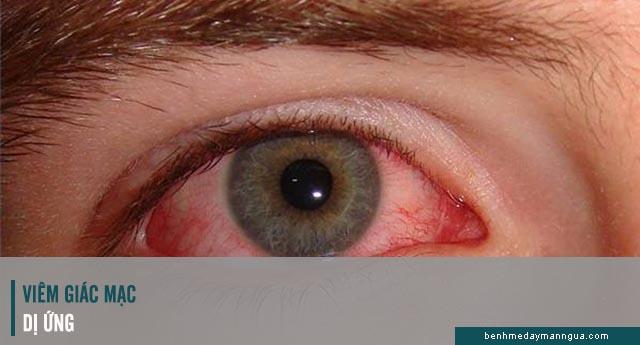 dấu hiệu viêm kết mạc dị ứng