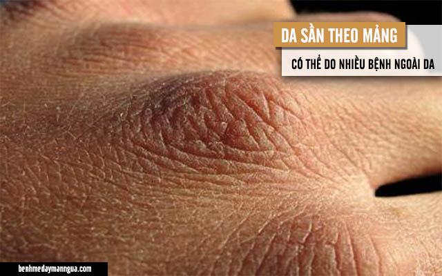 da sần theo mảng có thể do nhiều bệnh ngoài da