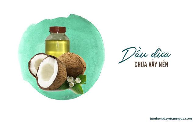 sử dụng dầu dừa chữa vẩy nến