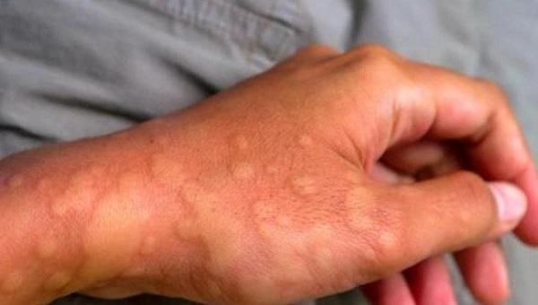 Dị ứng da, mề đay là nguyên nhân khá phổ biến gây ngứa và nổi cục