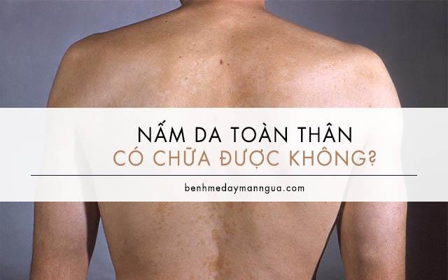 nấm da toàn thân có chữa được không
