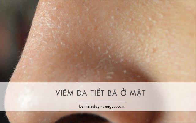 biểu hiện của bệnh viêm da tiết bã ở mặt