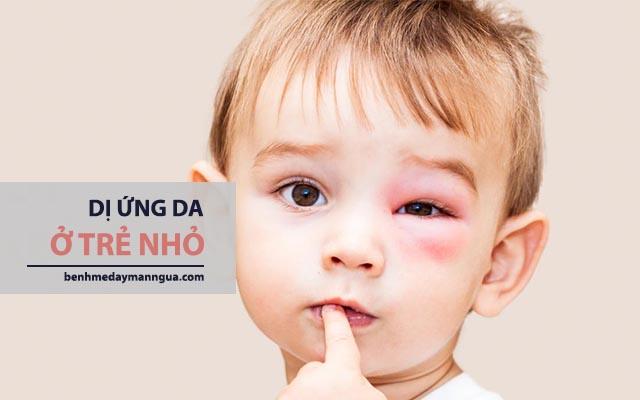 chữa dị ứng da ở trẻ nhỏ