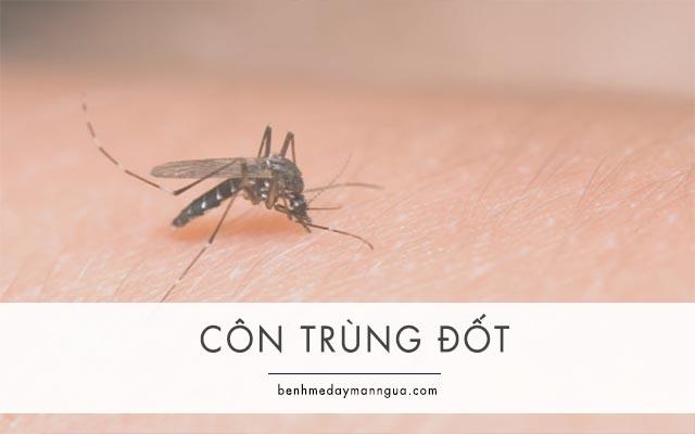 vết đốt của muỗi và các loại côn trùng có thể gây ngứa và nổi sẩn cục