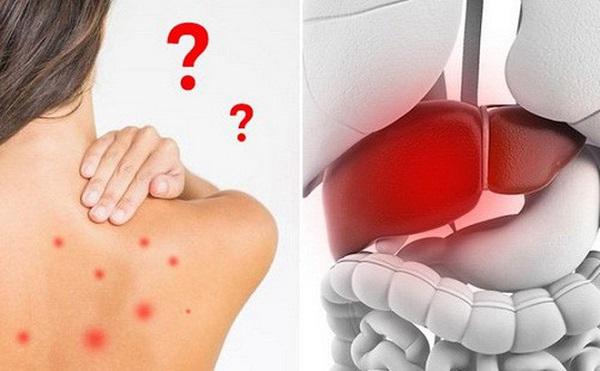 Chức năng gan thận suy giảm khiến quá trình đào thải độc tố của cơ thể đình trệ gây nên nổi mẩn ngúa phát ban