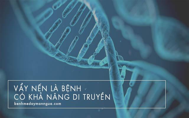 vẩy nến có tỉ lệ di truyền