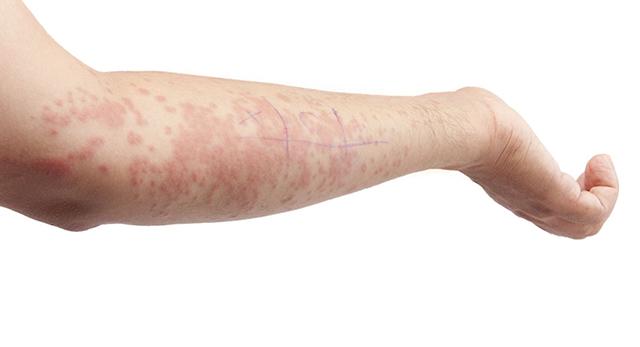 Nổi mẩn đỏ toàn thân nhưng không ngứa có thể là dấu hiệu của viêm mao mạch dị ứng