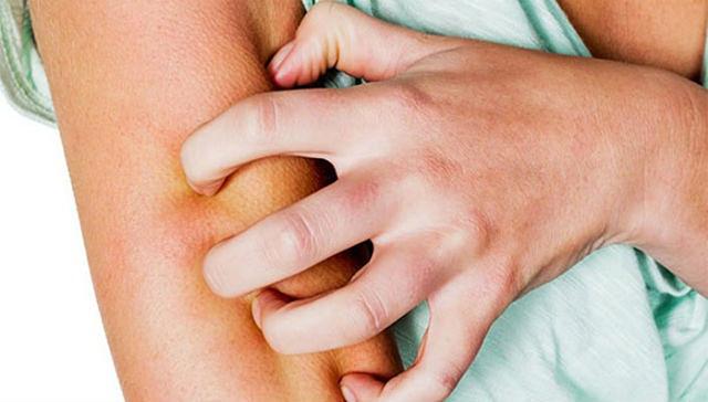 Ngứa toàn thân về đêm có  thể là triệu chứng của nhiều bệnh lý nguy hiểm
