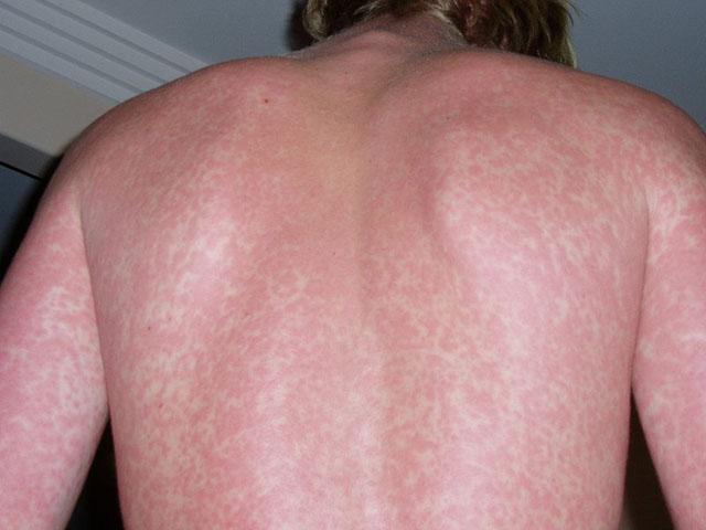 Nổi mẩn đỏ ngứa ở lưng