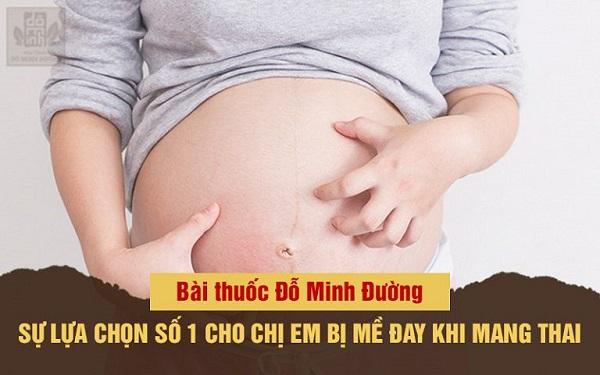 Bài thuốc trị nổi mề đay khi mang thai của Đỗ Minh Đường