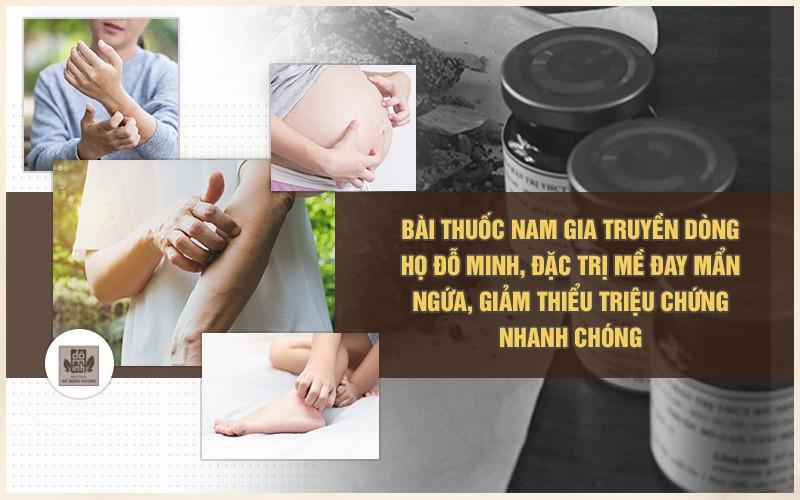 Bài thuốc chữa mề đay mẩn ngứa do bác sĩ Đỗ Minh Tuấn tối ưu