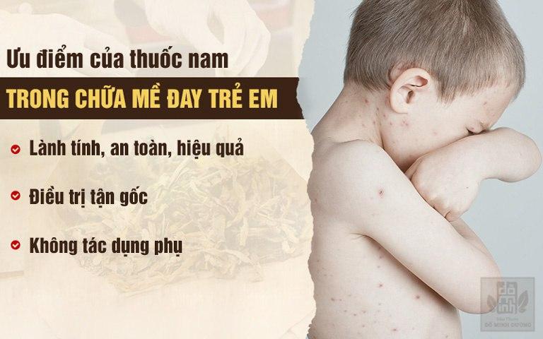 Ưu điểm của bài thuốc Nam chữa mề đay ở trẻ em