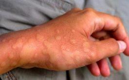 Phác đồ điều trị nổi mề đay mẩn ngứa tại nhà thuốc Đỗ Minh Đường và lời khuyên từ chuyên gia?