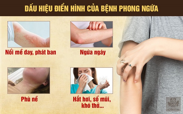 Những dấu hiệu của bệnh phong ngứa, nổi mề đay