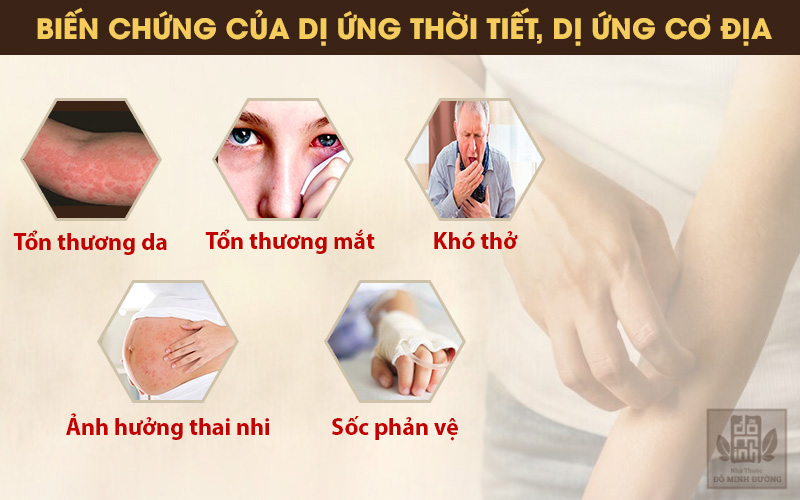 Những biến chứng khó lường từ bệnh dị ứng da