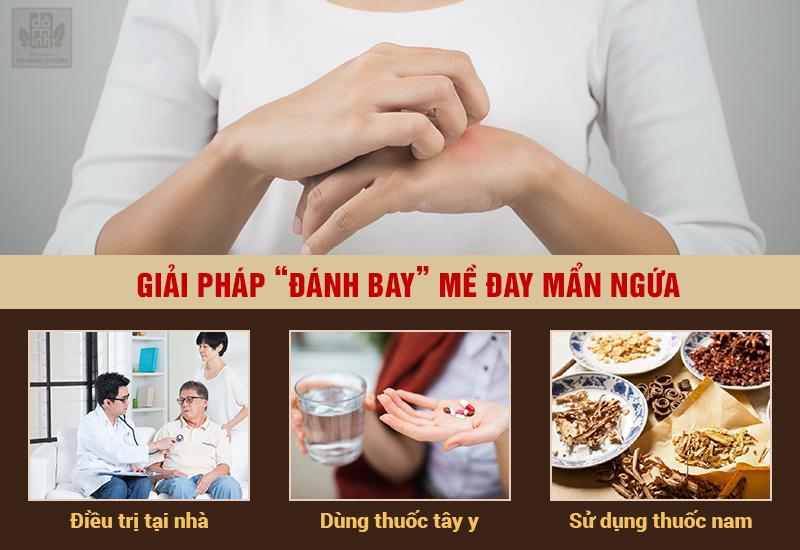 3 phương pháp chữa nổi mề đay phổ biến nhất hiện nay