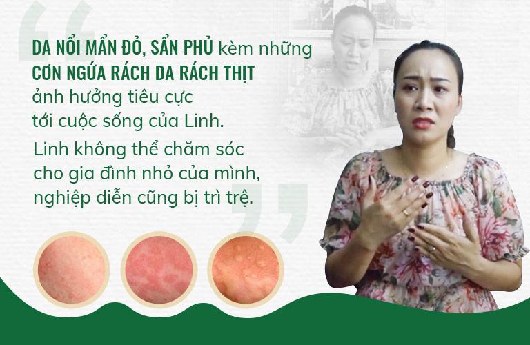 Diễn viên Phùng Khánh Linh đã từng bị mề đay mẩn ngứa đeo bám